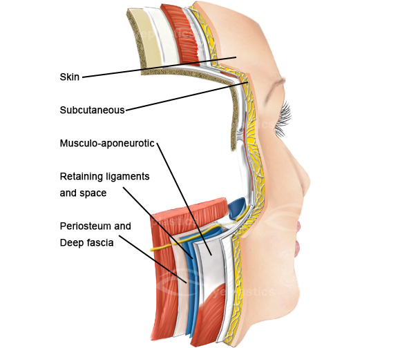 anatomy of face facelift surgery muscles