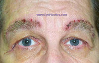 Post-Operative photograph: Brow Ptosis, excess skin, 6 days